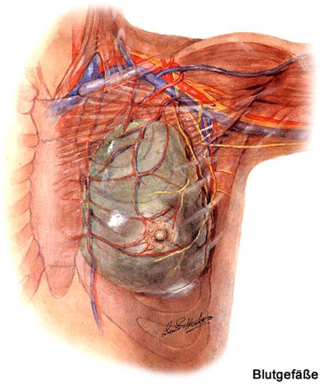 Die Erhöhung der Brüste der Operation